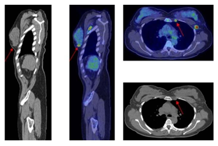 Лечение рака в Корее: статистика и реальные отзывы. Цены на лечение онкологии в Южной Корее